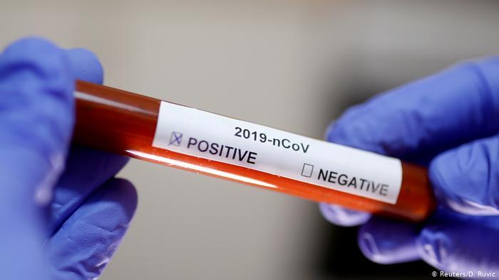"""المغرب يسجل 27 إصابة جديدة بفيروس """"كورونا"""" .. الحصيلة: 170"""